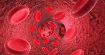 Hemofilia: simptome, diagnostic si tratament