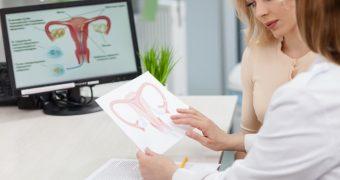 Un burete marin ar putea vindeca temutul cancer ovarian
