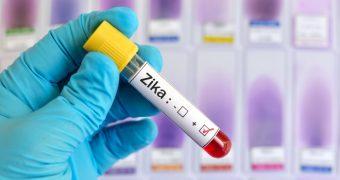 Virusul Zika ar putea ajuta la vindecarea tumorilor cerebrale