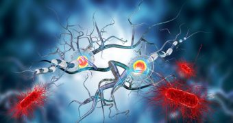 Glioblastomul: simptome si tratament