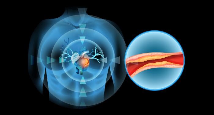 trucuri pentru a preveni accidentul vascular cerebral si infarctul