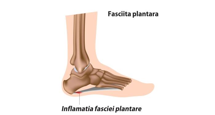 principala_fasciita_plantara