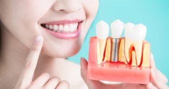 6 intrebari si raspunsuri despre implantul dentar
