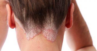 Psoriazisul scalpului: permis si interzis