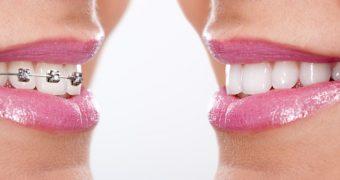 Ce trebuie sa stiti daca vreti sa va puneti aparat dentar