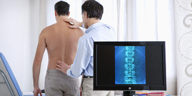 inainte-de-Care-este-diagnosticul-si-tratamentul-spondilitei-anchilopoietice-