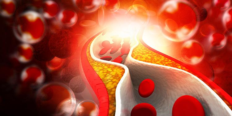 inainte-de-4-Hipercolesterolemie