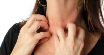 Tipuri de dermatita si dieta indicata