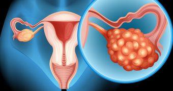 Plan personalizat pentru romancele care sufera de cancer ovarian