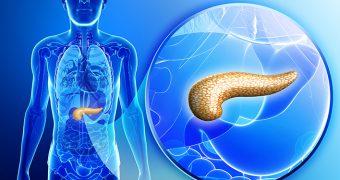 Afectiunile pancreasului: semnale de alarma