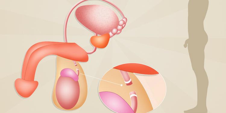 recuperare vasectomie