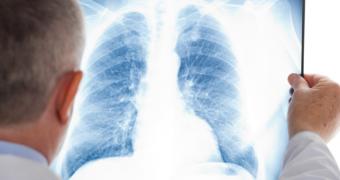 Sindromul de detresa respiratorie acuta: simptome si tratament