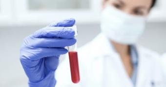 Infectia sangelui: cauze, factori de risc si simptome