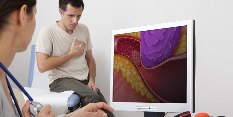 Models.  On screen, drawing representing an artery obstructed following a stenosis caused by the compression of the tumor.