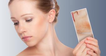 Dermatita atopica: din copilarie… la maturitate
