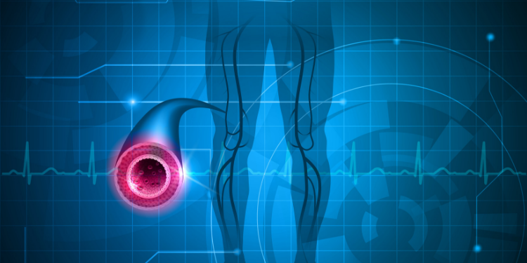 boala vasculara periferica