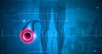Boala vasculara periferica, inamicul picioarelor sanatoase