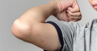 Vremea rece si psoriazisul: trucuri pentru ameliorarea simptomelor