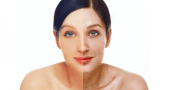 Hiperpigmentarea: cine sunt inamicii pielii fara pata