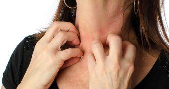 Eczema: alimente indicate si contraindicate