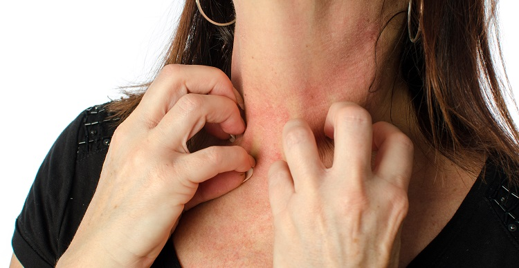 Woman scratching her neck, isolated on white