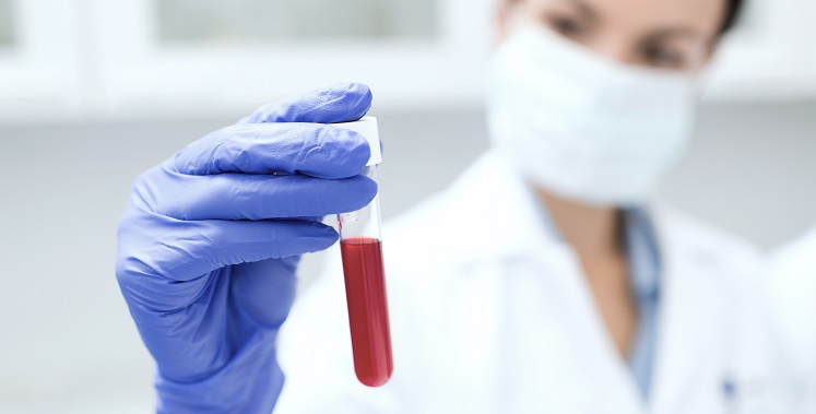 science, chemistry, biology, medicine and people concept - close up of young female scientist holding test tube with blood sample making research in clinical laboratory