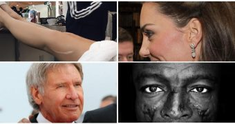 Celebritati cu cicatrici si povestile lor impresionante