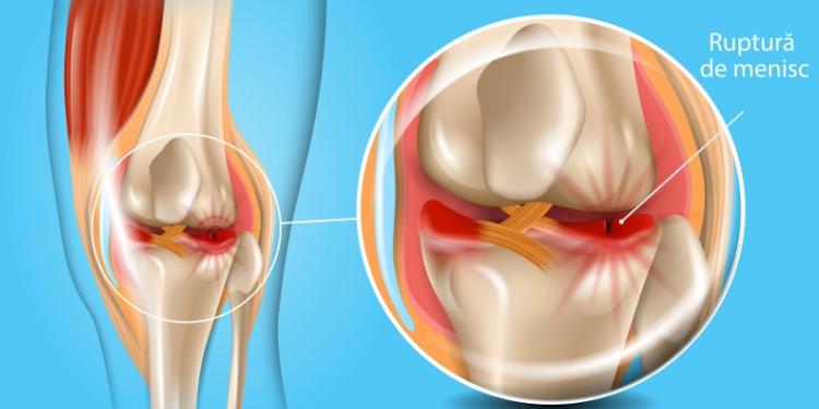 tratamentul artrozei cauzează artrita cu artrita reumatoidă  articulațiile sunt afectate în principal