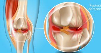 Ruptura de menisc: cauze, simptome, tratament