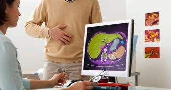 Ficatul gras: simptome si tratament