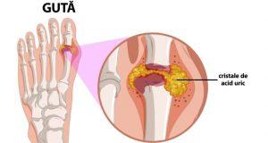 Guta: cauze, simptome, tratament