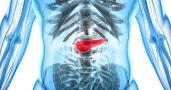 Fungii intestinali ar putea fi implicaţi în cancerul pancreatic