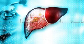 Statistici îngrijorătoare: cancerul de ficat face tot mai multe victime