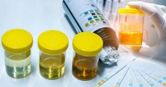 Culoarea urinei dezvăluie lucruri importante despre sănătate