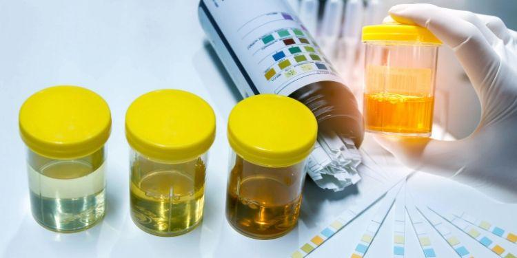 urină, culoarea urinei, ce indică culoarea urinei, urină tulbure,