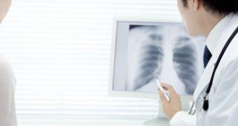 Există situaţii în care pneumonia nu este contagioasă