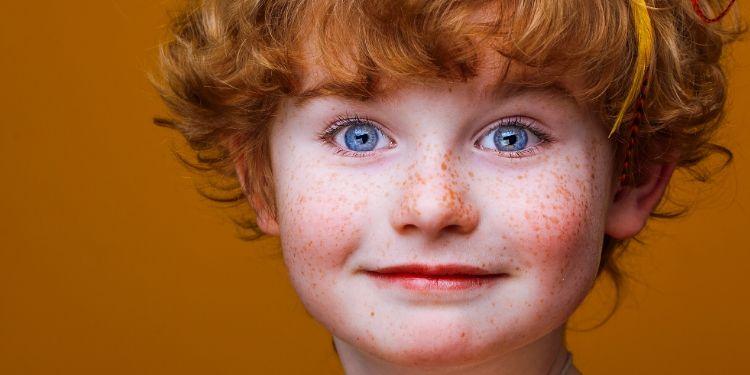 pistrui, ultraviolete, dermatolog, copii roșcați, exces de pigment,