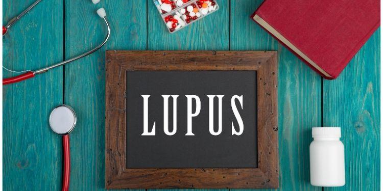 lupus, tratament lupus, lupus eritematos sistemic,