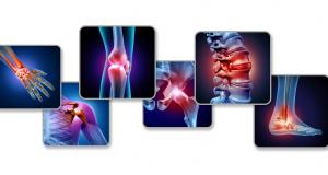 Osteofitoza: cauze, simptome, tratament