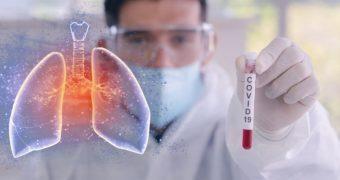 De ce sunt bărbaţii mai afectaţi de noul coronavirus