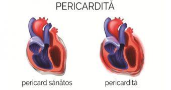 Feriţi-vă de pericardită, inima are nevoie de protecţie!