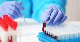 Cancerul ar putea fi depistat cu patru ani înainte de apariţia simptomelor