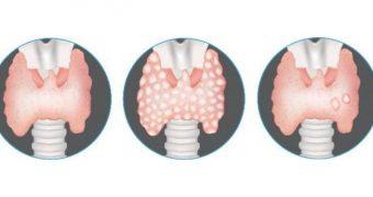 Nodulii tiroidieni. Cât de periculoşi sunt?