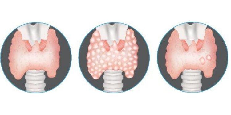 nodulii tiroidieni