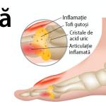 simptomele și tratamentul osteocondrozei