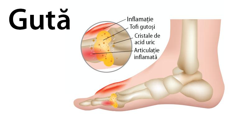 guta, simptome guta, artita gutoasa, tratament guta, acid uric, cristale de urat, articulatii, tesuturi, inflamatie articulatii, complicatiie gutei,