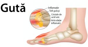Guta: tratamentul, foarte important în controlul simptomelor