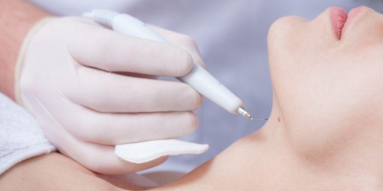 papiloame, tipuri de papiloame, cauzele papiloamelor, tratament papiloame, infectia cu HPV, papiloamele,