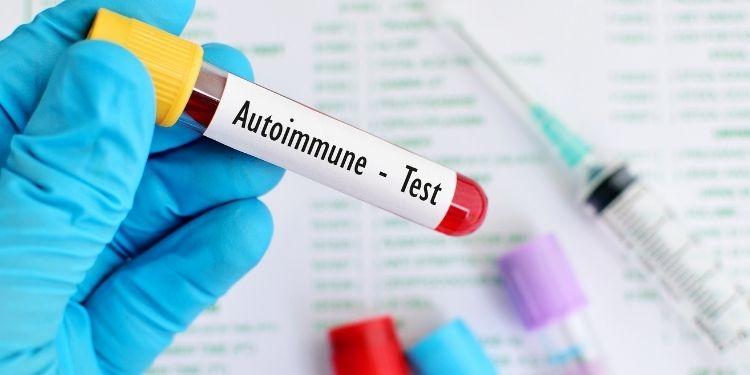 boli autoimune, sistem imunitar, simptome boala autoimuna, tratamentul bolilor autoimune, autoimunitatea, cauze boli autoimune, boli autoimune comune, inflamatie,