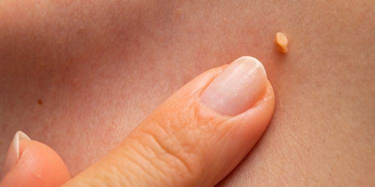 papiloamele, papiloame, tipuri de papiloame, cauzele papiloamelor, tratament papiloame, infectia cu HPV,